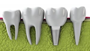 austin dental implants