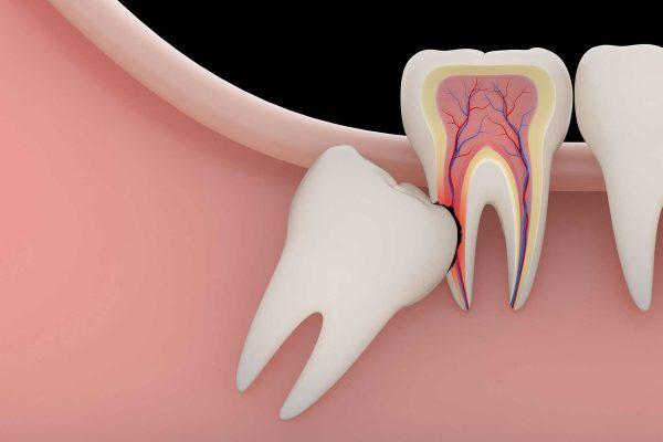 Impacted Wisdom Teeth | Austin Dentist | Austin Cosmetic Dentist | Tejas Patel | Wisdom Teeth